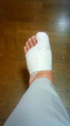 左足の爪がこのようになりました。
